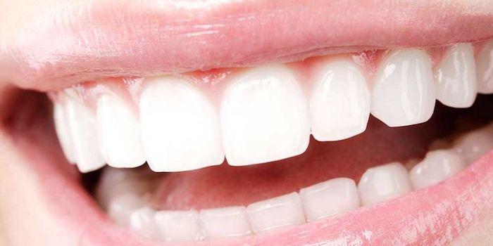 boca com dentes brancos