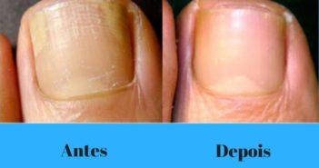 micose de unha antes e depois