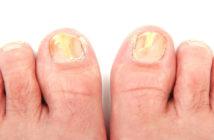 dois pés com unhas com micoses