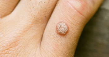 verruga vulgar no dedo