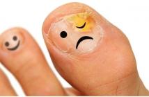 unhas dos pés com fungos