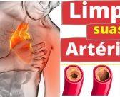 13 Alimentos que ajudam a desobstruir as artérias.